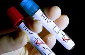 GD Crvenog križa Opatija i Hotelijersko-turistička škola obilježavaju Dan borbe protiv AIDS-a