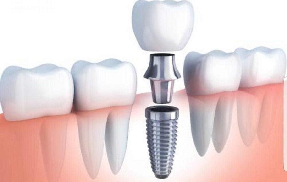 PROMO artDENTAL Priprema za zubni implantat – sve što trebate znati